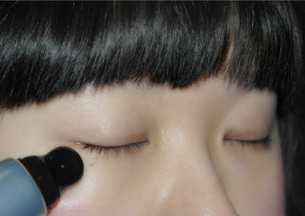 按摩头设计配合特殊成分蕺菜精华的促进眼周肌肤水分代谢,消除黑眼圈.